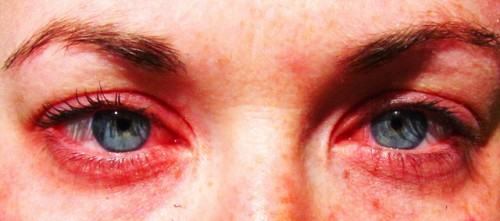 red eyes from pollen allergy